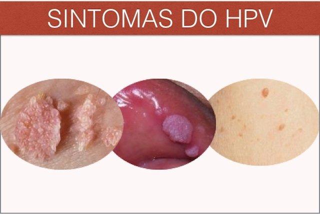 papilloma virus utero cura