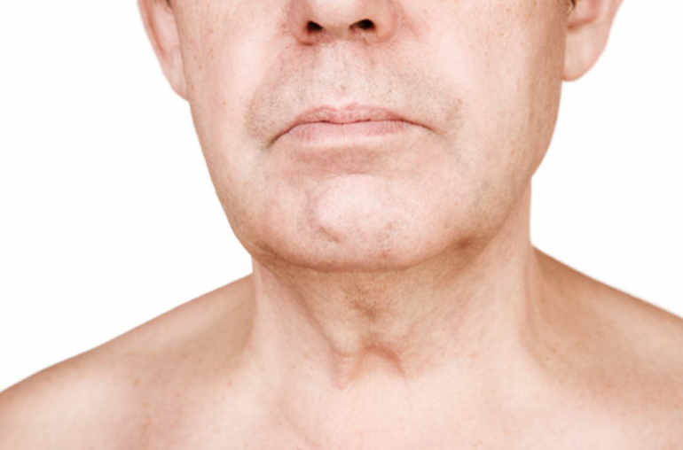 papillomavirus cancer de la gorge