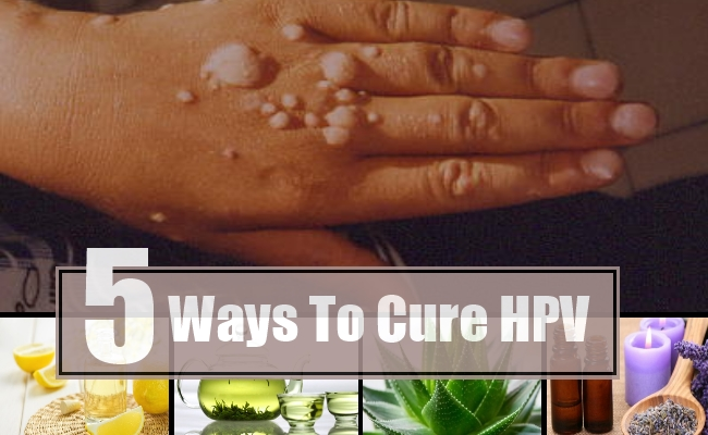 papillomavirus how to treat