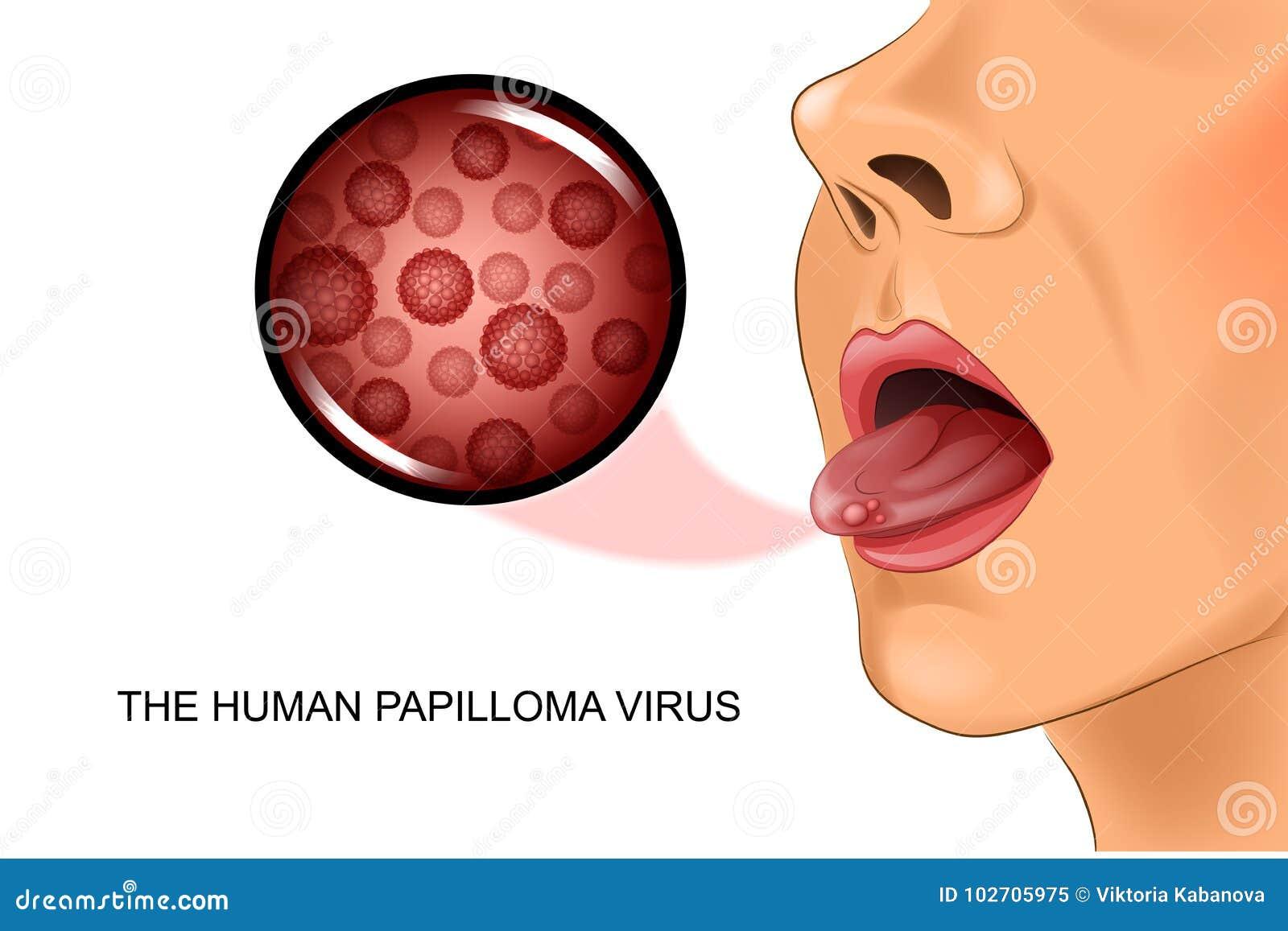 papillomavirus langue symptomes)