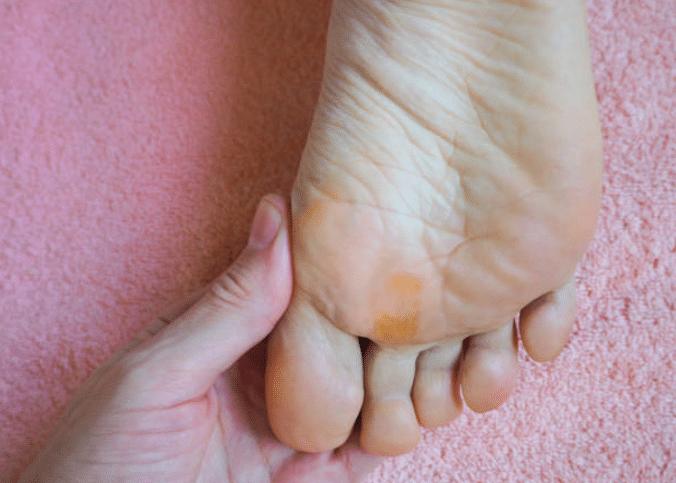 papillomavirus pied traitement