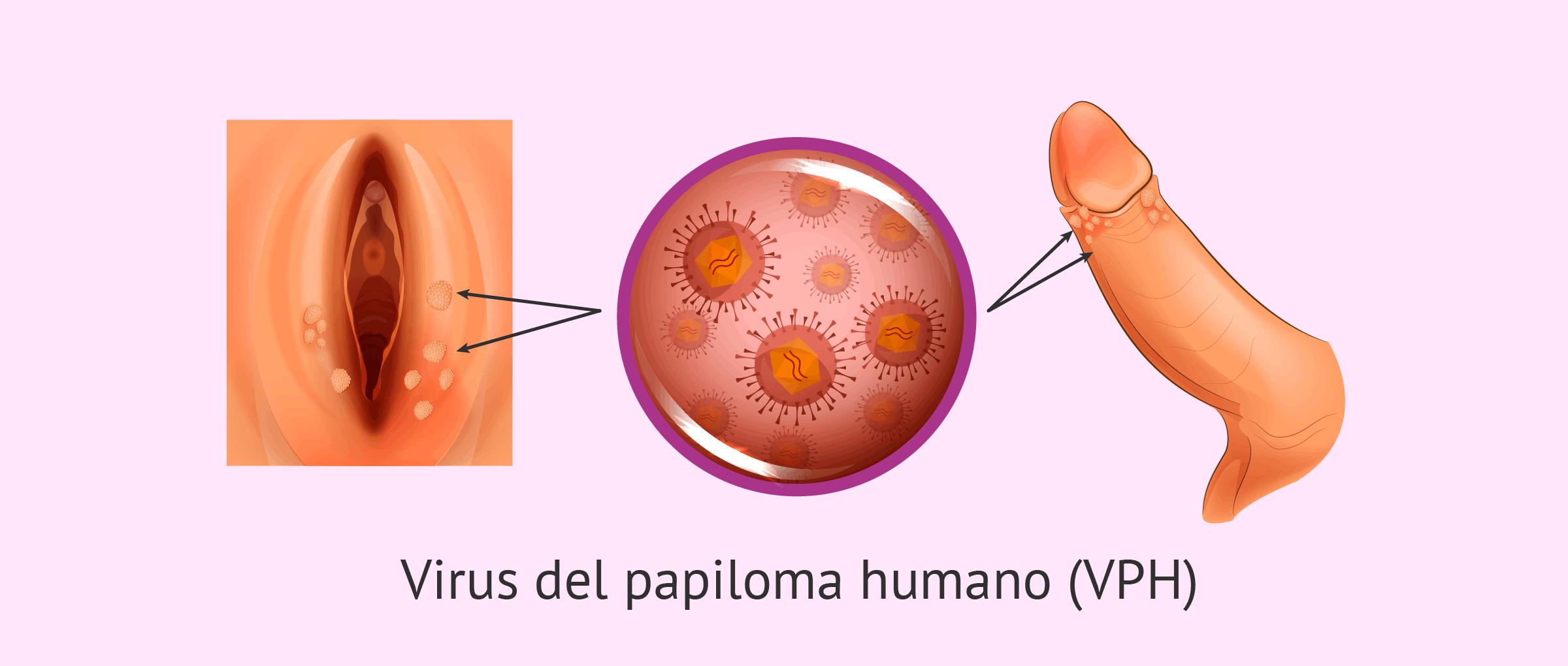 papiloma humano contagio de mujer a hombre