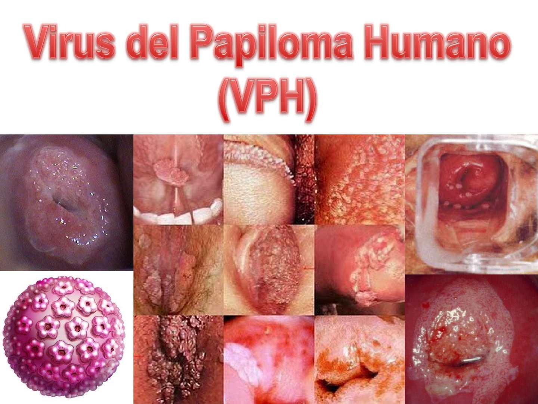 papiloma humano medlineplus)