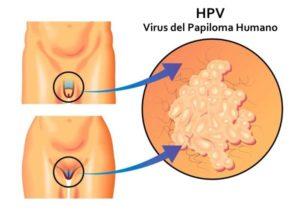 papiloma humano tratamiento para hombres