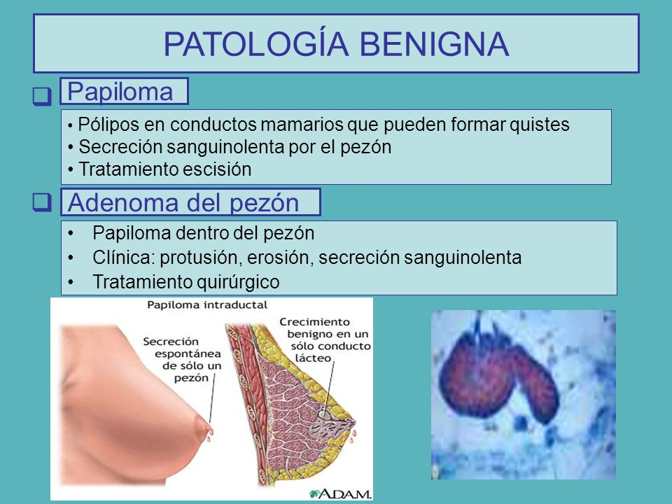 papiloma intraductal diagnostico)