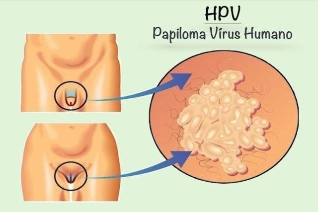 papiloma virus herpes)