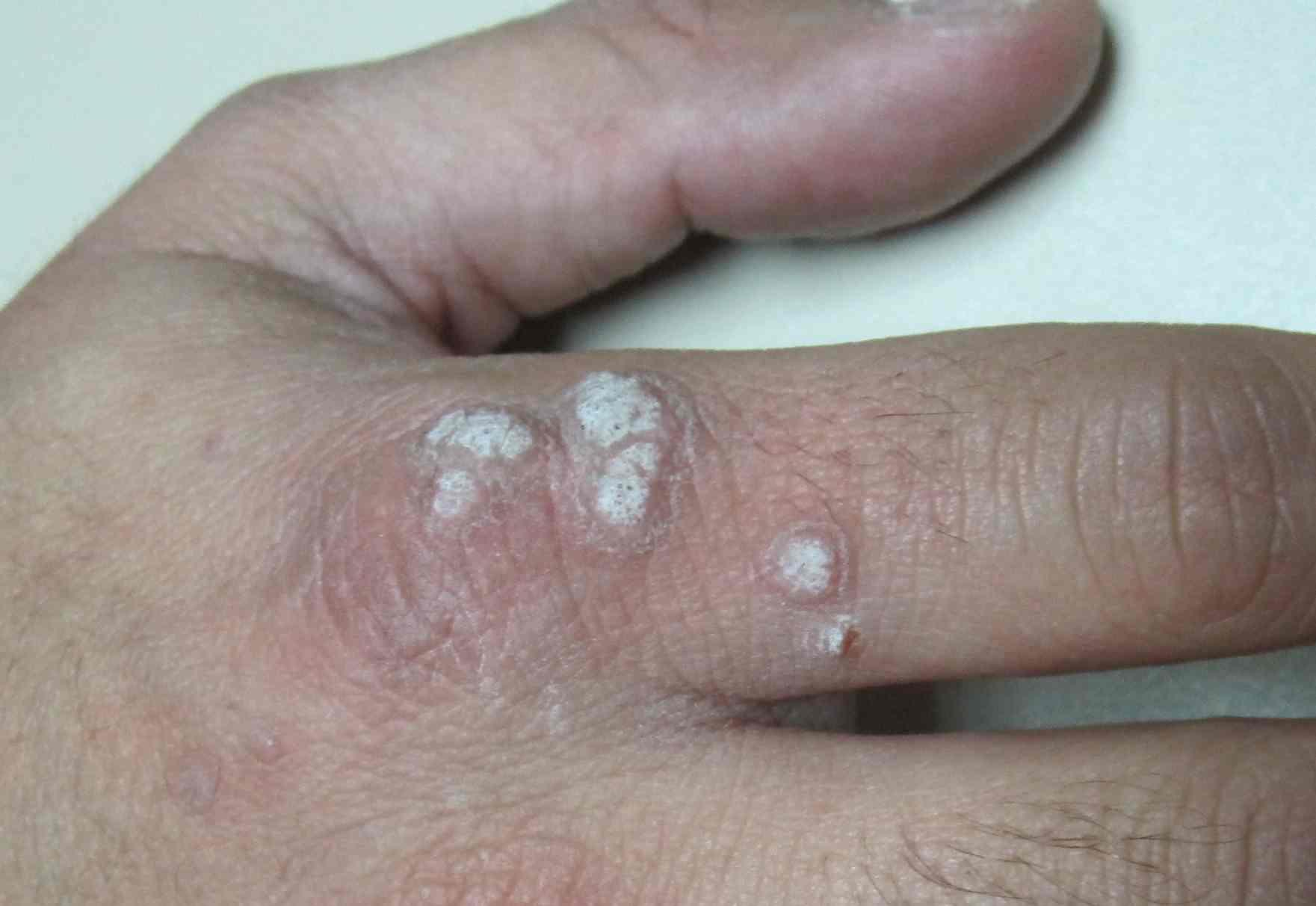 papiloma virus humano que pode causar papilomas condilomas ou carcinoma)