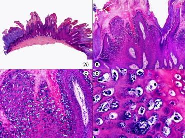 oxiurose sintomas prevencao papillomavirus bain de bouche
