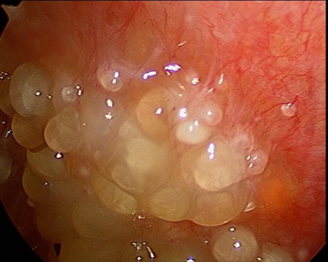Utilitatea imunohistochimiei în diagnosticul carcinomului ovarian