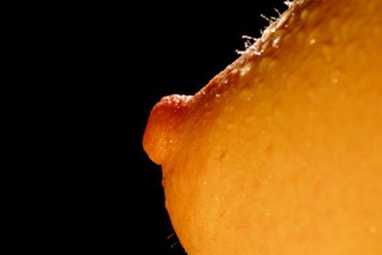 que es papiloma seno