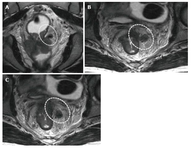 Prostatică obstrucție carcinom