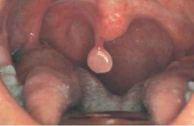 removal of papilloma on uvula)