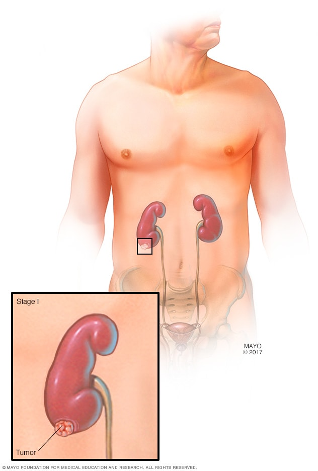 renal cancer urine test