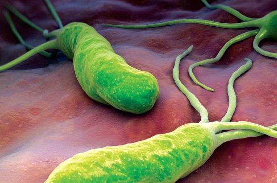 respiratie urat mirositoare helicobacter