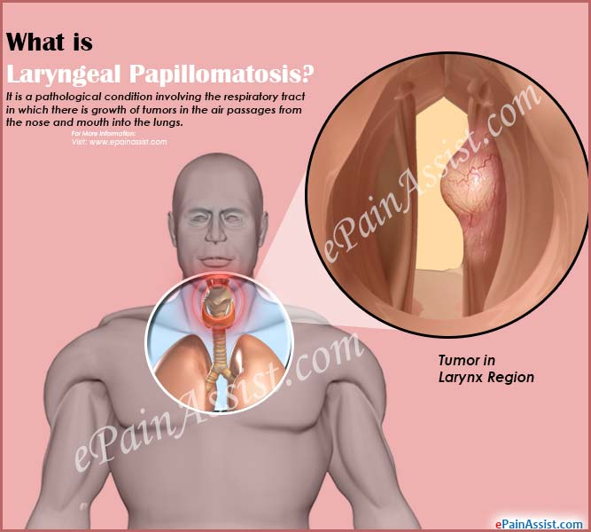 respiratory papillomatosis how to treat)