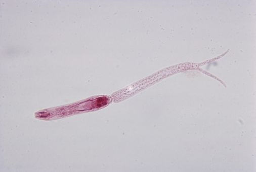 schistosomiasis cercariae cancer de colon simptome analize
