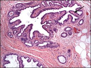 sclerosing intraductal papilloma with apocrine metaplasia)