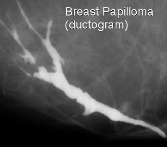 signs of breast duct papilloma