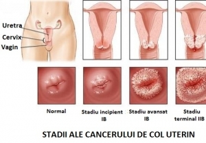 simptome cancer col