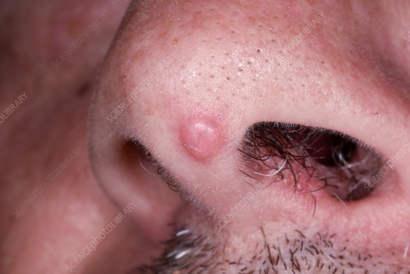 squamous cell papilloma nose)
