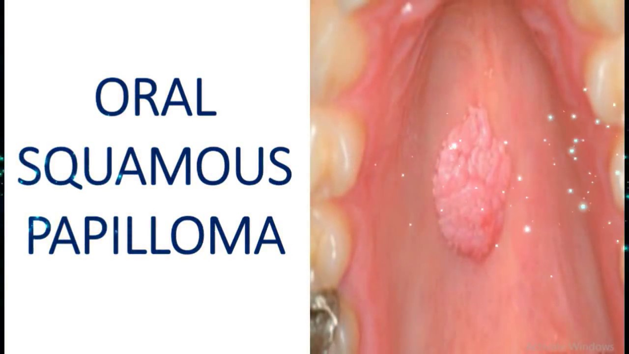 squamous papilloma tongue symptoms
