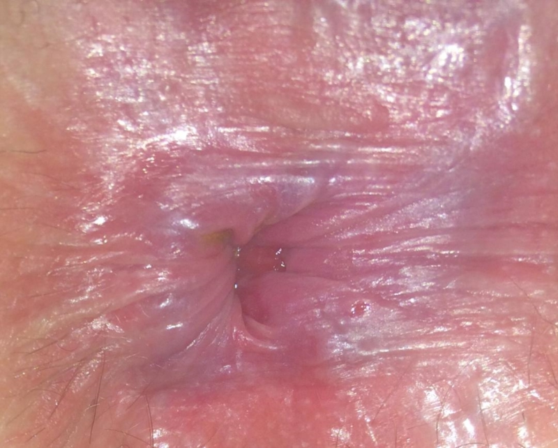 squamous papillomatosis yeast infection)