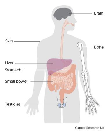 testicular cancer non- hodgkins lymphoma