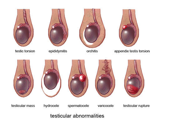 testicular cancer or epididymis