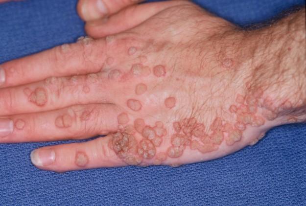 trasmissione papilloma virus verruche)