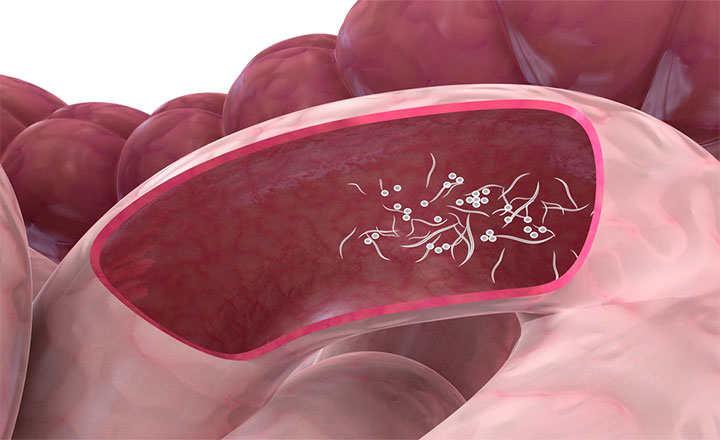 Priporaty de Giardia