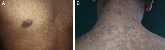 tratamiento para papilomatosis confluente y reticulada