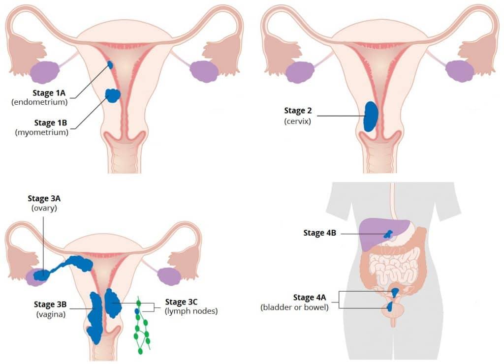 uterine cancer abdominal fluid)
