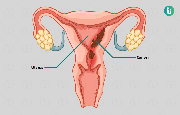 uterine cancer endometrial