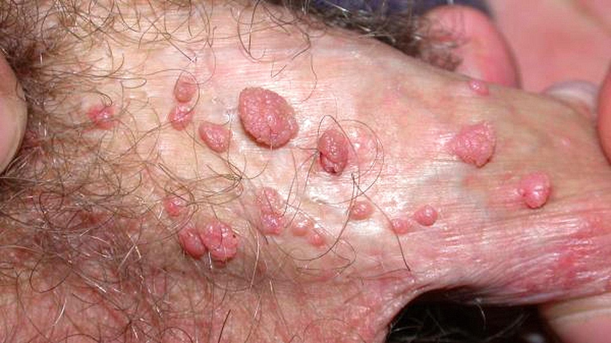 verruche genitali da papillomavirus umano