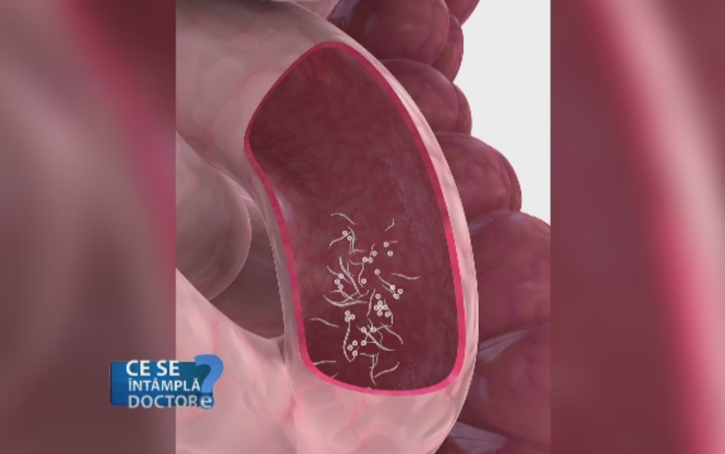 Paraziti intestinali la copii