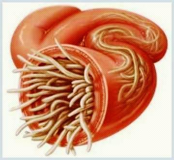 viermi intestinali lamblia
