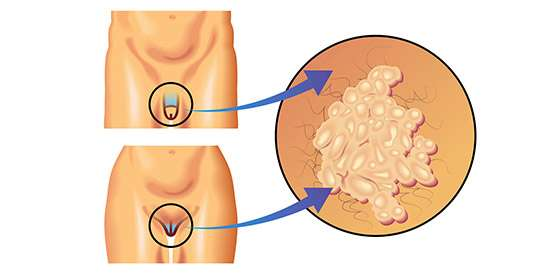 virus del papiloma humano en hombres ano