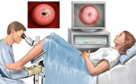 virus papiloma ginecologia