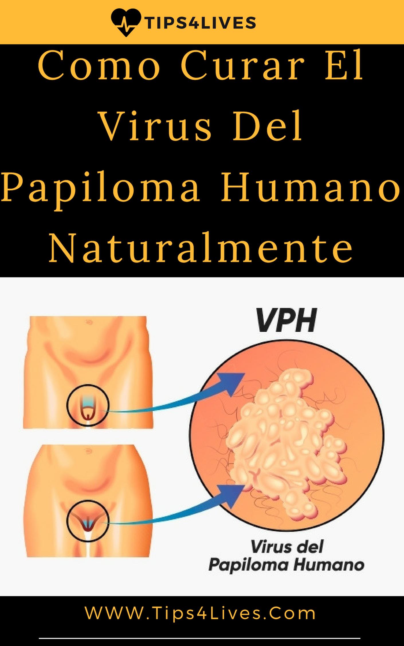 virus papiloma tiene cura)
