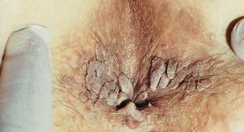 virusi genitali