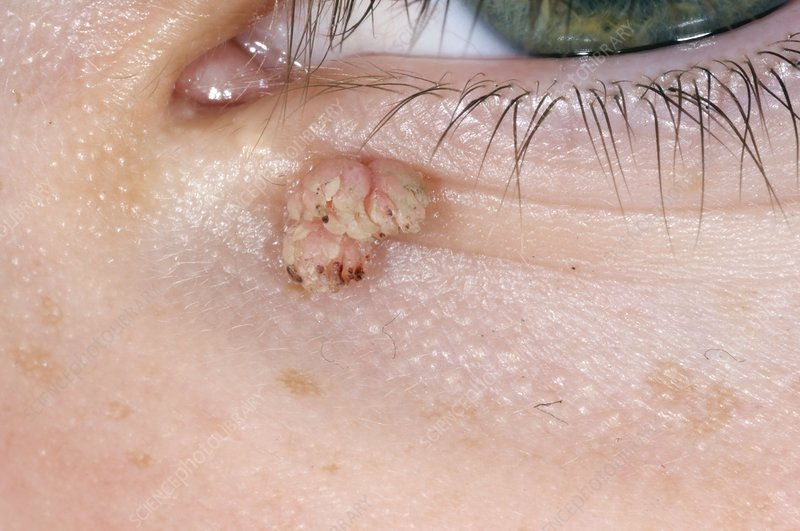 wart on lower eyelid papilloma virus terapie