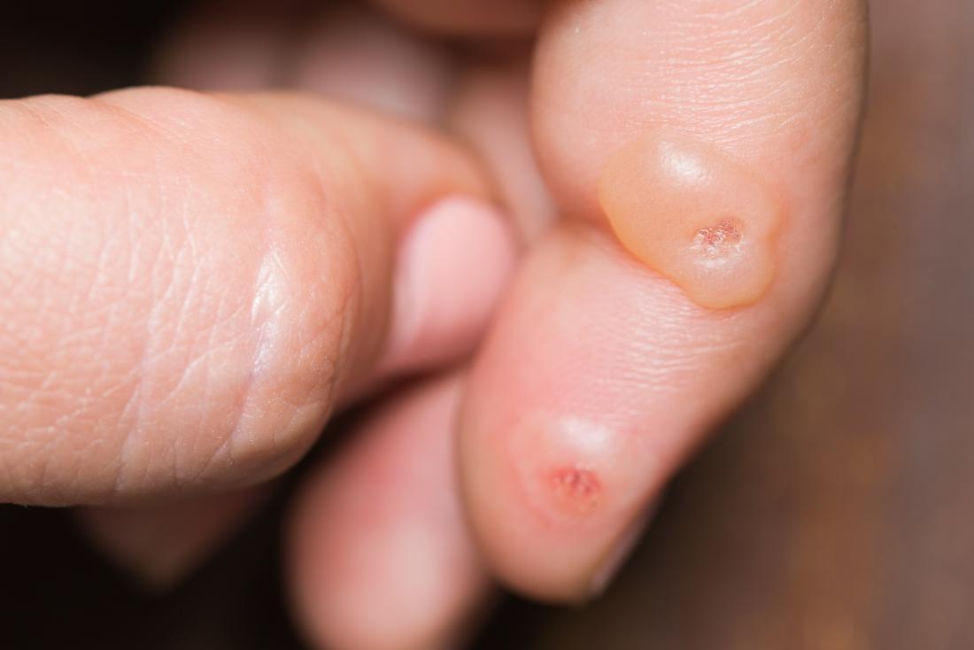 wart skin lump
