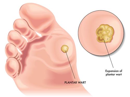 despre varicoză pur și simplu complex de exerciții de picior în varicoză