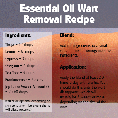 wart treatment essential oil)