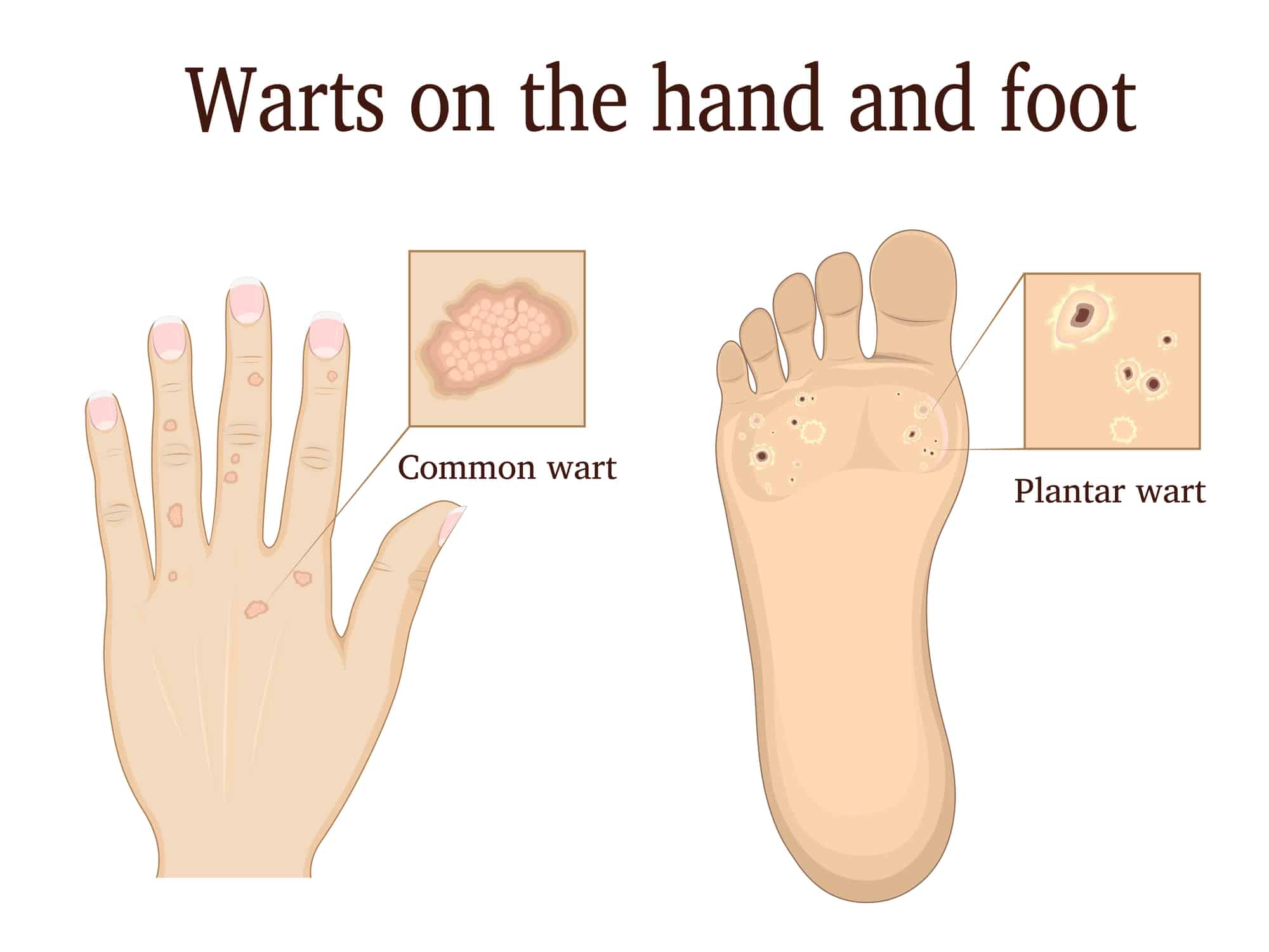 warts on hands essential oils)