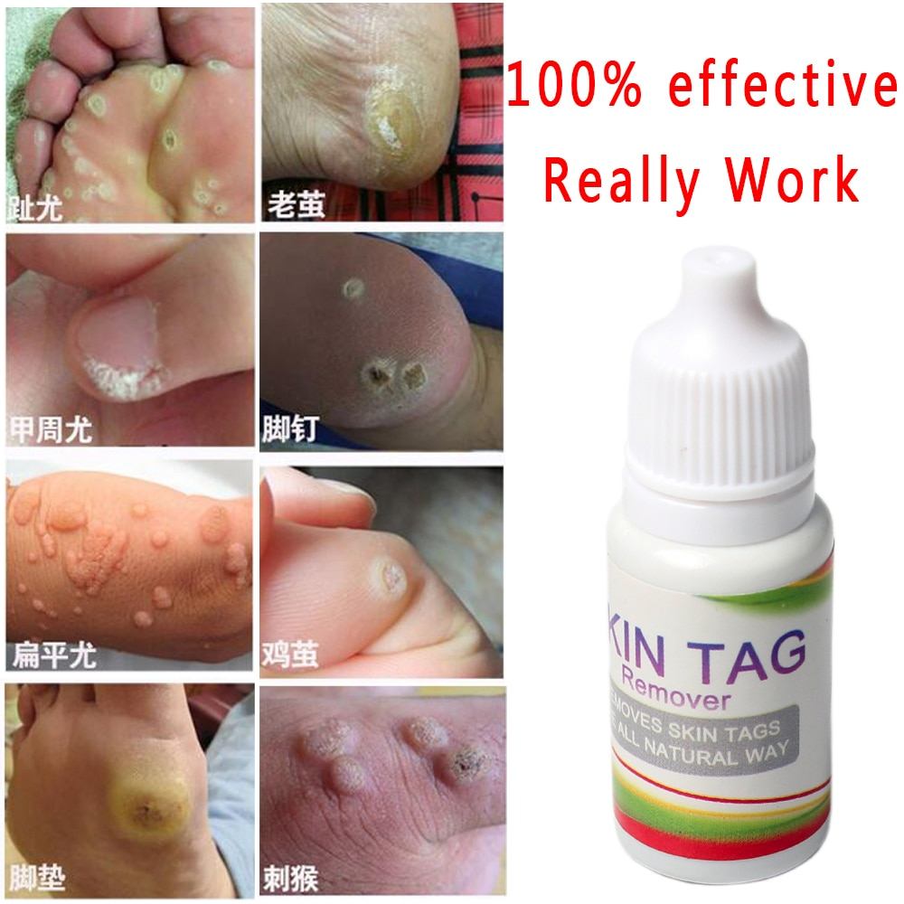 Home Remedies for Skin Tag Removal | Get rid of warts, Skin tag removal, Health