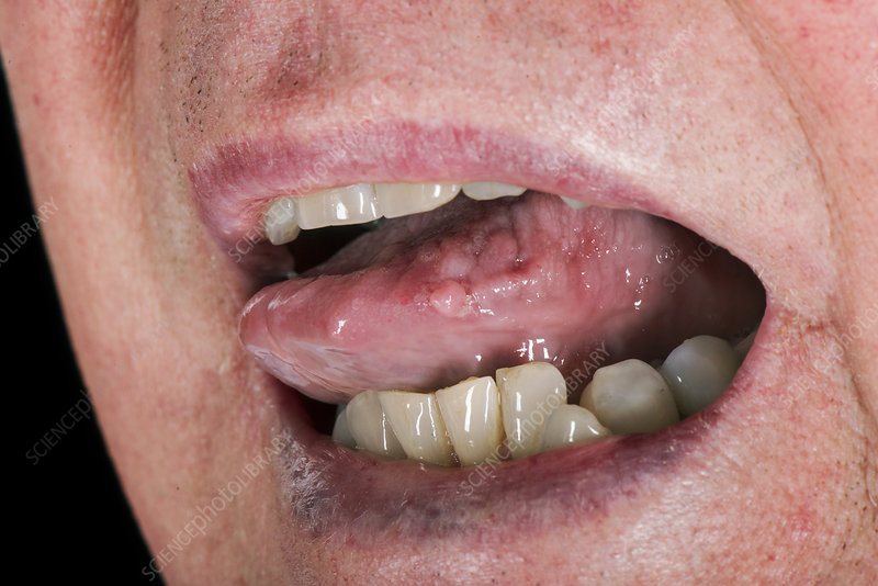 what causes papilloma on the tongue)