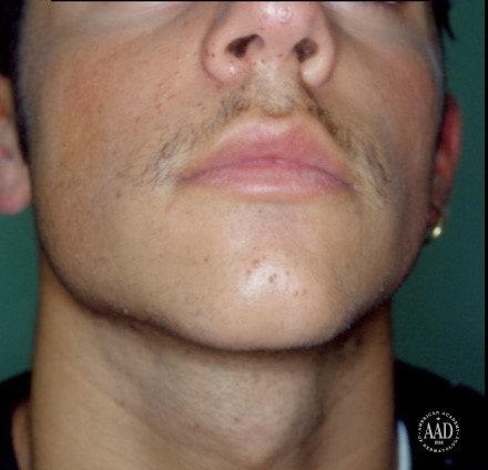 facial warts hpv type)