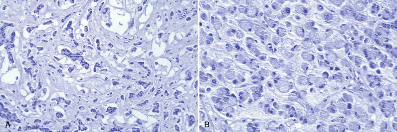 papillary urothelial carcinoma with signet ring cells)