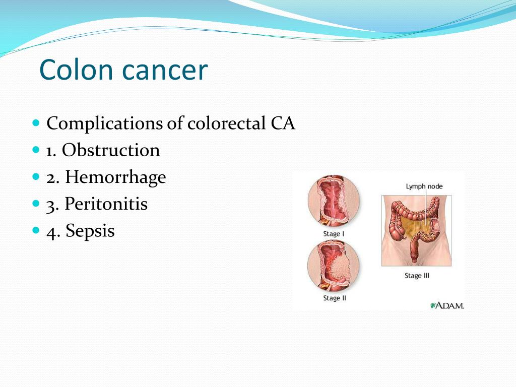 cancer colorectal complications)